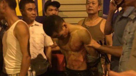 Nguoi dan duoi bat nghi pham cua co tai xe taxi cuop tai san - Anh 1