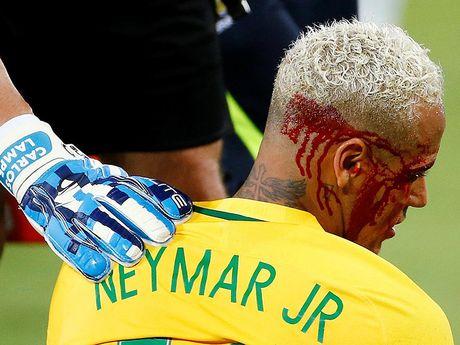 Neymar do mau o Nam My, troi Au dau long - Anh 1