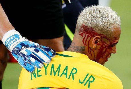 Neymar do mau o Nam My, troi Au dau long - Anh 2