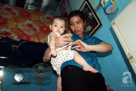 Canh song kho so khong the tin noi: 30 nguoi chung 1 nha ve sinh o xom tro cong nhan - Anh 12