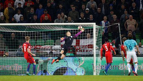 Loai Rooney, tuyen Anh van bi Slovenia cam hoa - Anh 2
