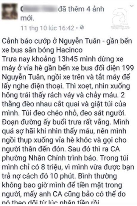 Ha Noi: Co gai tre bi 2 ten cuop tao ton cuop tui xach va lam rach hong bang vat sac nhon - Anh 1