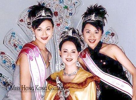 Hoa hau dep nhat ATV 'xau dien' vi tham my mui hong - Anh 1