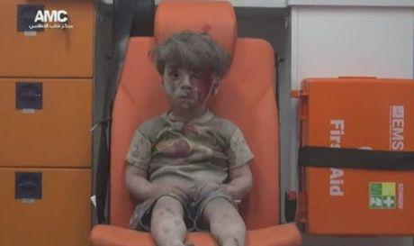 Tieng goi 'Bo oi' xe long cua be gai Syria voi khuon mat day mau sau vu no bom - Anh 3