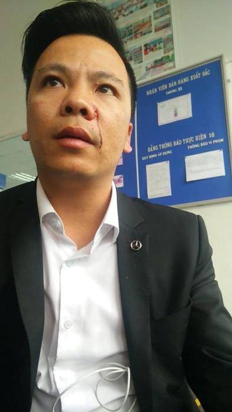 Isuzu Long Bien bao nhieu lan bi khach hang to ban xe 'deu'? - Anh 3