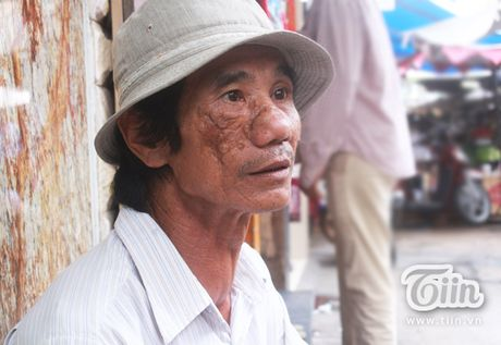 30 nam ban ve so va noi lo com ao gao tien cua nguoi dan ong khuyet tat - Anh 1