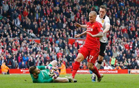 """Dac san"" Liverpool – MU: Nhung cu tac ""an thua du"" - Anh 8"