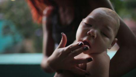 Bo Y te nang muc canh bao nguy hiem cua vi rut Zika tai Viet Nam - Anh 1